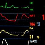 Czym zajmuje się kardiologia?